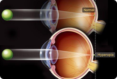 hyperopia 60 év után nugát a legjobban gyógyítja a látást