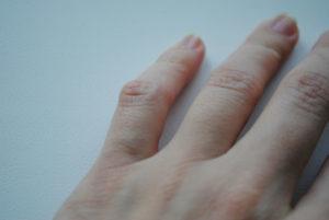 Почему появляются шишки на суставах пальцев рук лечение опухоли в суставе