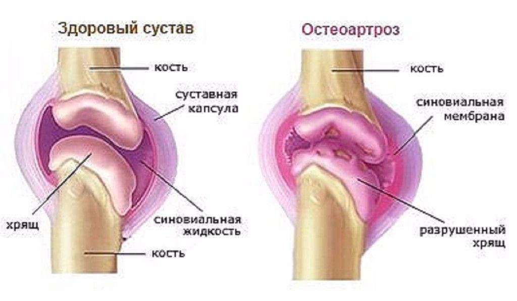 Суставы крутят сделать снимок коленного сустава в минске